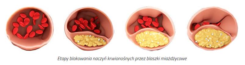 Cholesterol OFF - tabletki na obniżenie cholesterolu