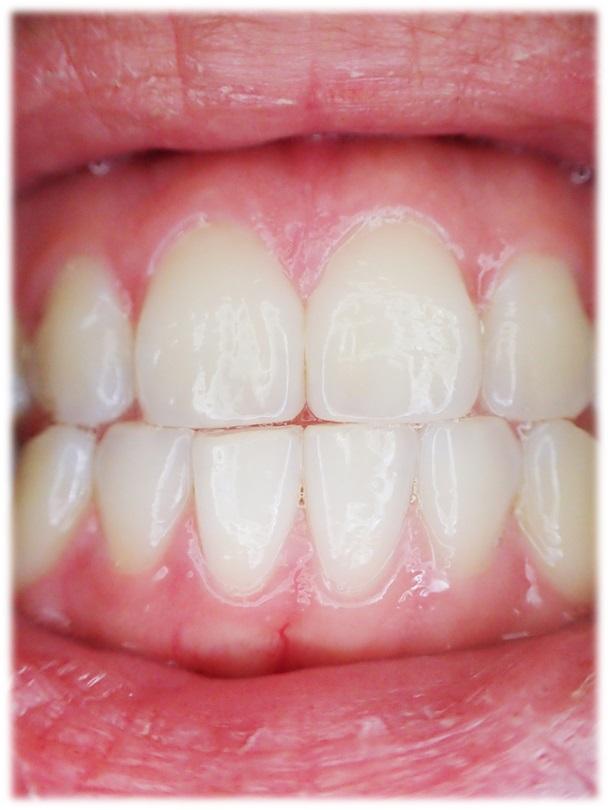White Express System - wybielanie zębów